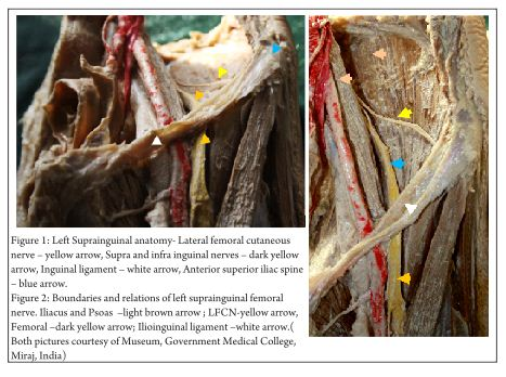 fascia iliaca block – an anatomical and technical description, Muscles