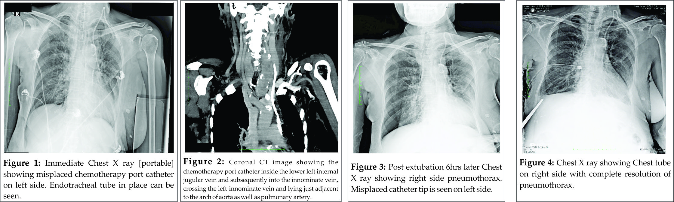 Misplaced Chemotherapy-port Catheter Following Left Internal Jugular ...