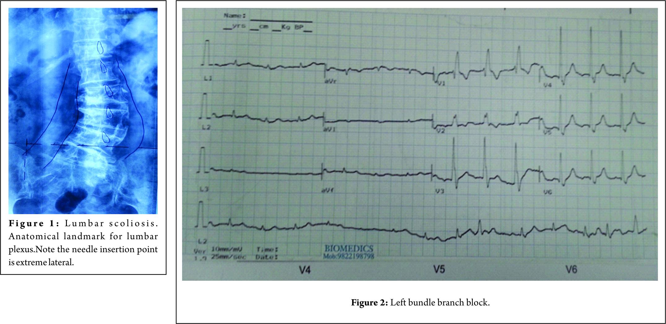 Combined lumbar and sacral plexus block in geriatric high-risk ...