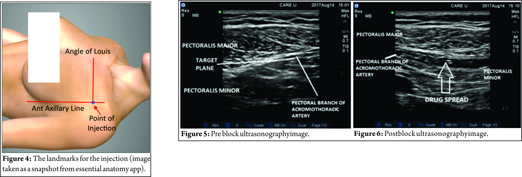 Peripheral nerve stimulator guided pectoralis (PEC-I) block: A novel ...
